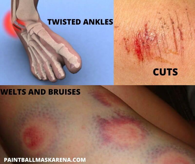 Common paintball injuries