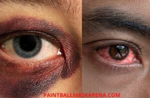 eye injuries in paintball